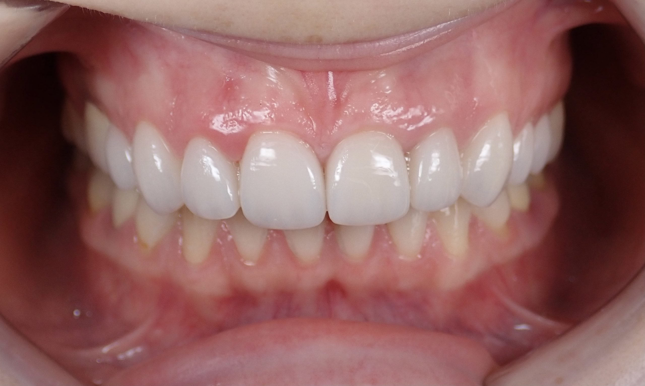 sunset dental bali portofolio After A